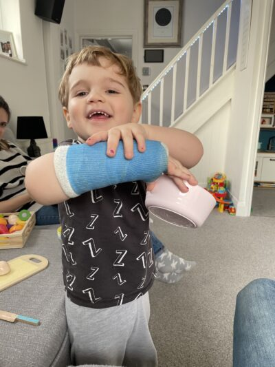 The First Break – Grayson and his Broken Wrist